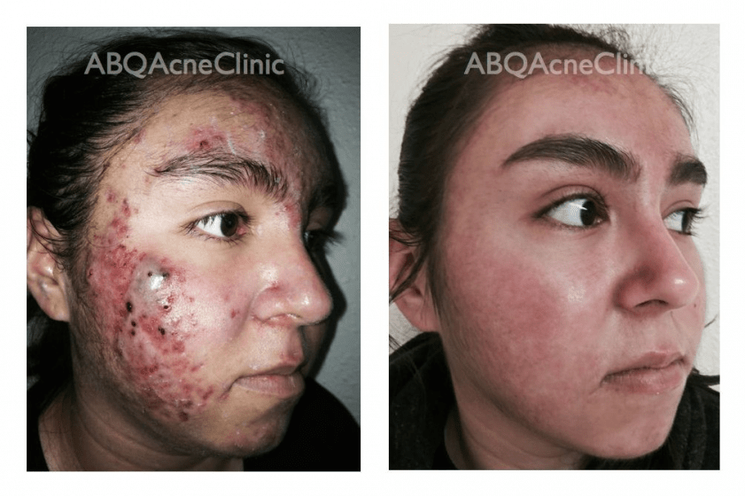 Abq Skin Care Amp Acne Clinic